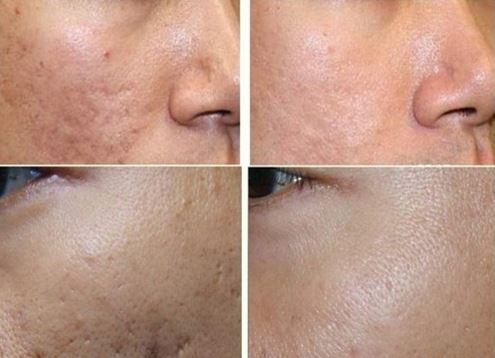 Hiệu quả khi sử dụng kem trị sẹo Scar Esthetique